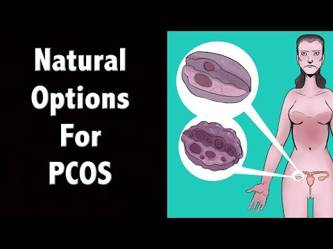 Natural PCOS Treatment Options - Polycystic Ovary Syndrome