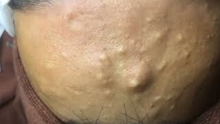 How to Remove Blackheads And Whiteheads On Face Easy ✦ Acne Treatment ✦