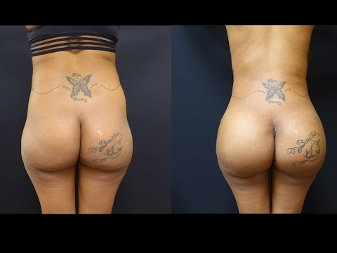 Butt Augmentation with 712cc Implants and Fat Transfer to her Hips