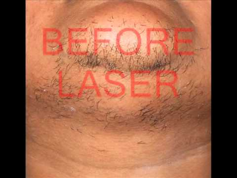 LASER HAIR REMOVAL / UNWANTED HAIR