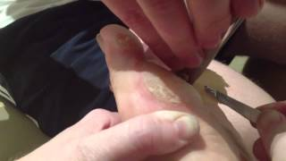 Home surgery - pussy callus removal