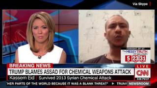 Syrian survivor of gas attack pleads with Trump to avoid Obama
