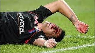 Gila Pelanggaran Sepakbola Horor / Tackles
