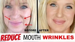 Get RID Of MOUTH WRINKLES! WithOUT Fillers!