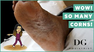 Multiple deep corns with callus: whole foot treatment