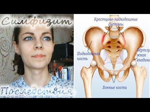 Расходится лобковая кость при беременности