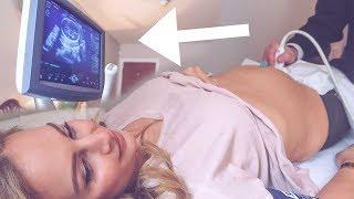 Pregnancy Scan Surprise