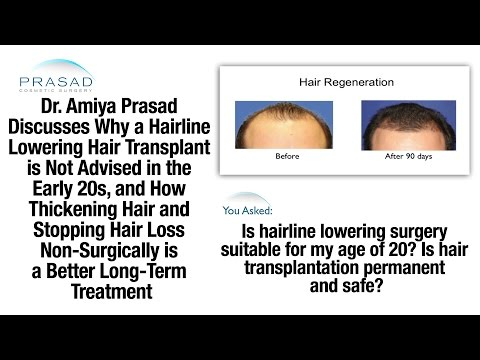 Why Hairline Lowering Transplant is Not Advised at 20, & Stopping Further Hair Loss Non-Surgically