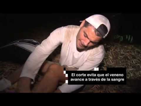 Frank de la Selva es mordido por una víbora Russell