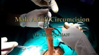 Male Adult Circumcision; Erişkin Erkek Sünneti