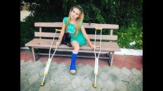 Elena amputee preview - Leg Cast