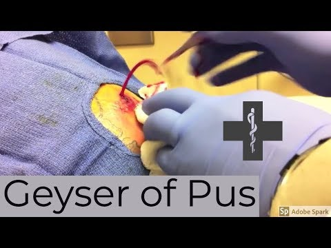 Big Geyser of Pus from a deep large arm abscess