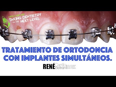 Implantes dentales en paciente con tratamiento ortodóntico. 13 35
