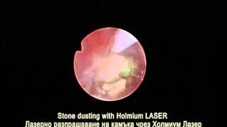 Лазерно отстраняване на камък в уретера в Токуда Болница