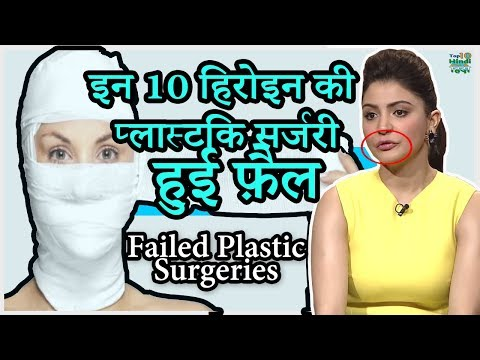 Xxx Mp4 10 Bollywood Celebrities Plastic Surgery GONE Terribly Wrong हिंदी 3gp Sex