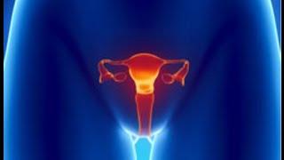 Hindi Mabuntis o Infertility – ni Dra. Ghe #3 (OB-Gynecologist)