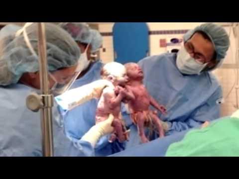 Conmovedor 2 bebés nacen dándose la mano en Estados Unidos