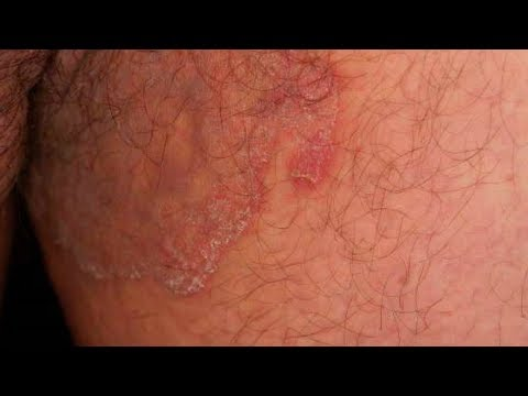 Jock Itch Home Treatment 5 ways to Cure Jock Itch Fast,Jock Itch Home Remedy