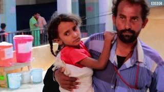 الكوليرا في اليمن قد تتفاقم  خلال موسم الأمطار