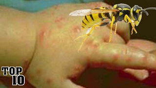Top 10 Insects You Don't Want To Get Stung By