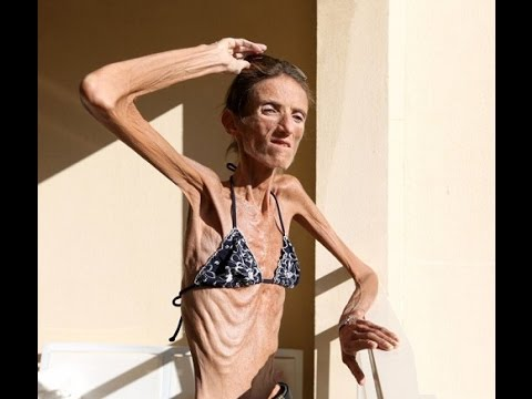 Worlds Skinniest Woman & Fattest Man Alive Amazing O Gosh