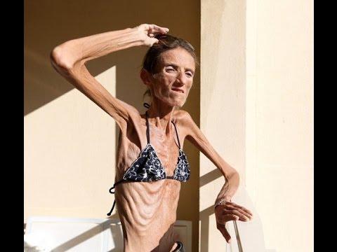 Xxx Mp4 Worlds Skinniest Woman Amp Fattest Man Alive Amazing O39Gosh 3gp Sex