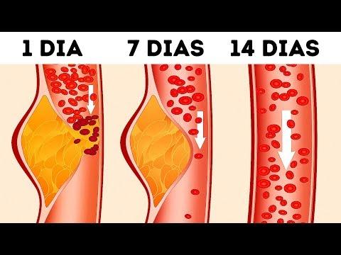 Xxx Mp4 O Que É A Dieta DASH E Por Que Os Médicos A Consideram Uma Das Melhores 3gp Sex