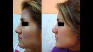 rinoplastia - cirugia punta nasal