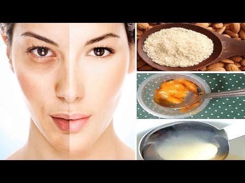 Melasma Cure || Home Remedies #Hyperpigmentation Treatment at Home