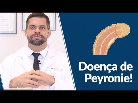 Doença de Peyronie Pênis Torto O que é Causas Tratamentos e Exames