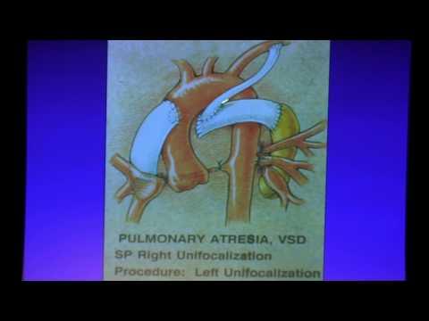 Xxx Mp4 Adult Congenital Cardiac Surgery Dr Hillel Laks 2017 UCLA ACHD Symposium 3gp Sex