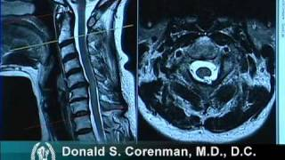 How to Read a MRI of Cervical Stenosis with Spinal Cord Injury | Spine Surgeon in Colorado