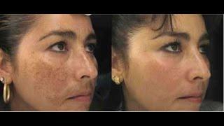 Eliminar las manchas negras en la cara en ta solo 15 minuto