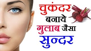 चुकंदर बनाए गुलाब जैसा सुंदर Beetroot Benefits For Beauty - Beauty Tips in Hindi by Sonia Goyal #76