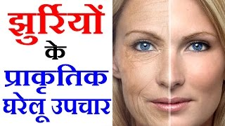 Wrinkle Treatment झुर्रियों के उपचार Beauty Tips in Hindi by Sonia Goyal #92