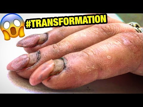 Xxx Mp4 DESTROYED NAILS TRANSFORMATION HARD WORKER WOMAN GETS CRAZY RUSSIAN STYLE MANICURE At Home 3gp Sex