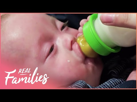 Baby Needs A Vital Operation To Repair His Cleft Lip And Palate | The Kid's Hospital Episode 4