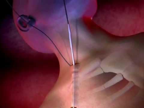 ProGuide™ Chronic Dialysis Catheter Animation