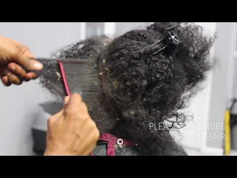 Xxx Mp4 Picking BIG Scalp Flakes Psoriasis And Dermatitis SEW IN WEAVE REMOVAL 3gp Sex