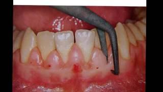 Gingivectomy & Gingivoplasty   YouTubevia torchbrowser com