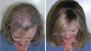 Como fazer o cabelo parar de cair e crescer muito mais rápido e resistente c/ esta receita caseira