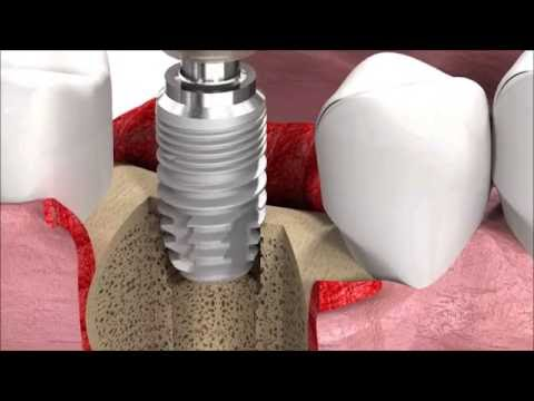 Dental Implant Procedure SICmax implant insertion