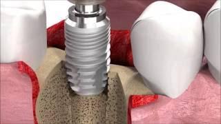 SIC invent Dental Implant Procedure: SICmax implant insertion