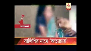 Woman horrifyingly tortured in the name of Kangaroo court at Malda