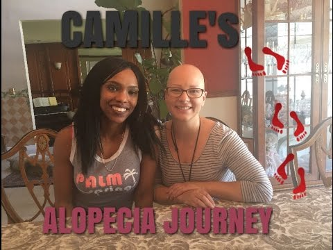 LETS TALK || Camille's Journey with ALOPECIA || Q&A STYLE