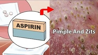 10 Surprising Uses of Aspirin You Didn't know