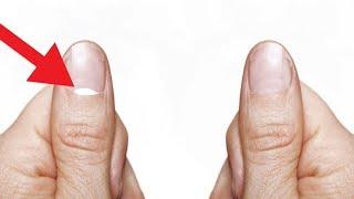 नाखून पर सफेद निशान | Nail White Marks Explained