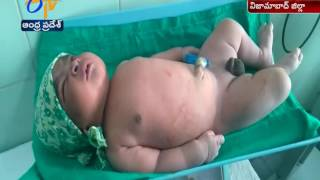 5.25 Kg Baby Boy Born | in Normal Delivery | in Nizamabad