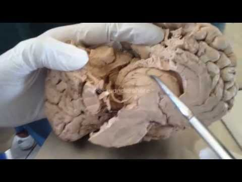 Xxx Mp4 Caudate Lentiform Thalamus Internal Capsule Demo Sanjoy Sanyal Neuro Lab Fall 2013 3gp Sex