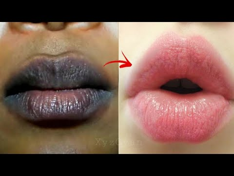 Xxx Mp4 सिर्फ 2 मिनट में काले होंठो को इतना ज्यादा गुलाबी कर देगा ये नुस्खा किसी एक्टर से कम नही लगोगे LIPS 3gp Sex
